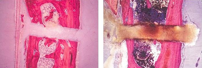 骨の断面図